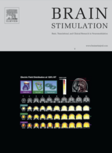 Article published in Brain Stimulation